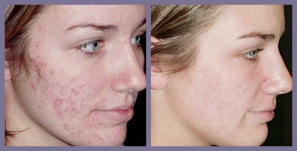 fotos-de-cicatrices-de-acne-antes-y-despues-escision-quirurgica