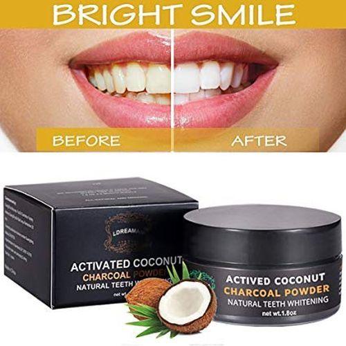 mejores-productos-para-blanquear-dientes-en-casa-ldream