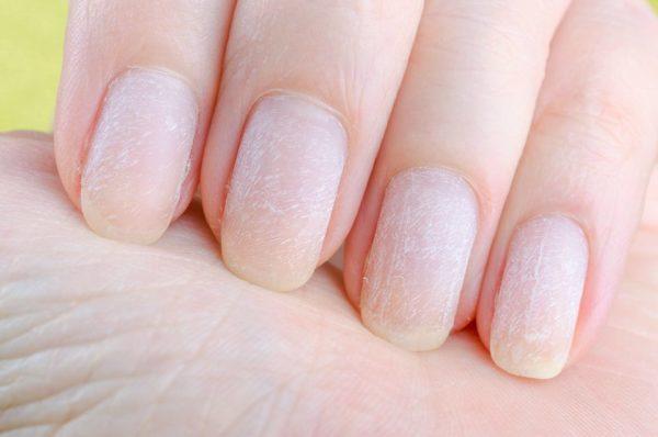 Principales causas de las uñas agrietadas