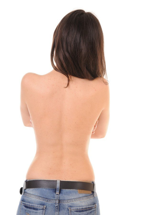 Problem skin on female back