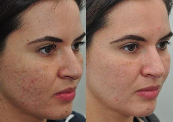 fotos-de-cicatrices-acne-antes-y-despues
