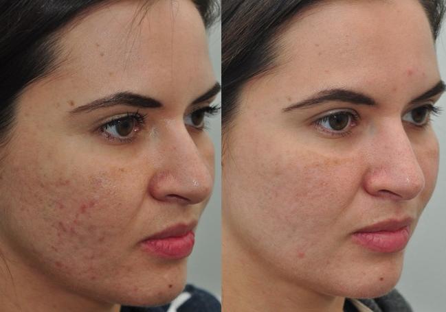 El tratamiento de las manchas de pigmento sobre el labio superior