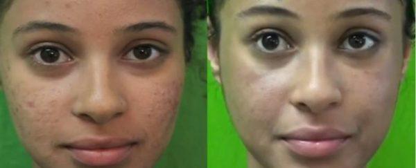 fotos-de-cicatrices-de-acne-antes-y-despues-dermoabrasion