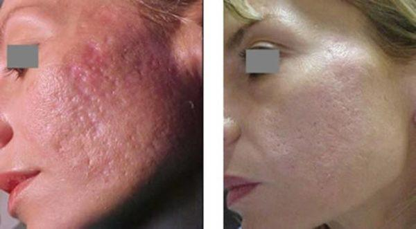 fotos-de-cicatrices-de-acne-antes-y-despues-laser