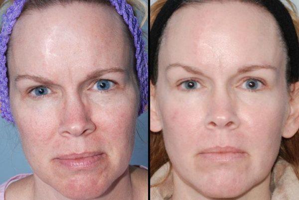 fotos-de-cicatrices-de-acne-antes-y-despues-maquillaje