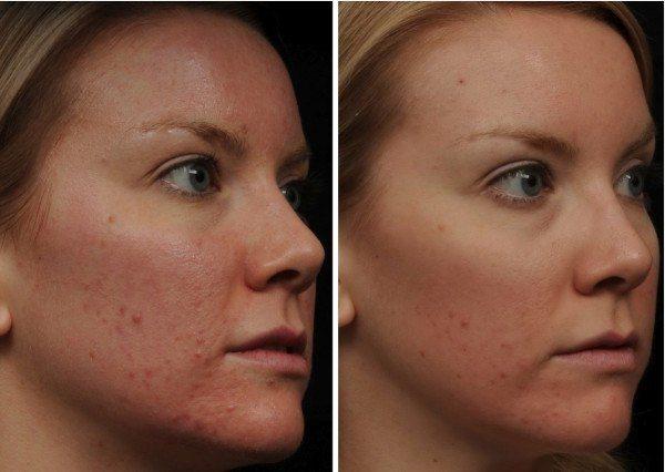 fotos-de-cicatrices-de-acne-antes-y-despues-peeling-quimico