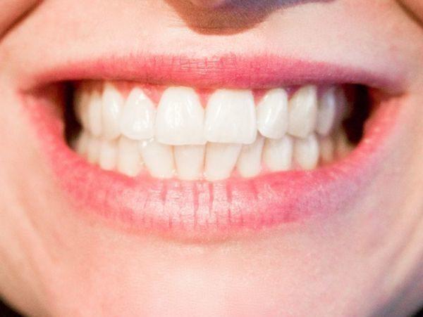 mejores-productos-para-blanquear-dientes-en-casa-sonrisa
