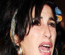 Las bocas más horribles de famosas